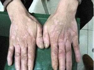 为什么手部容易患白癜风